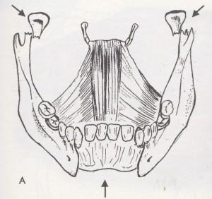 mechanismus odlomení zadních partií čelisti (kresba autora)